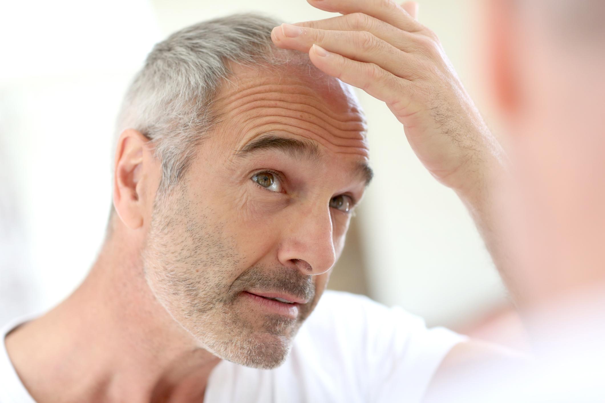 image Comment ralentir la chute de cheveux ?